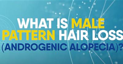 Alopecia - Male pattern hair loss